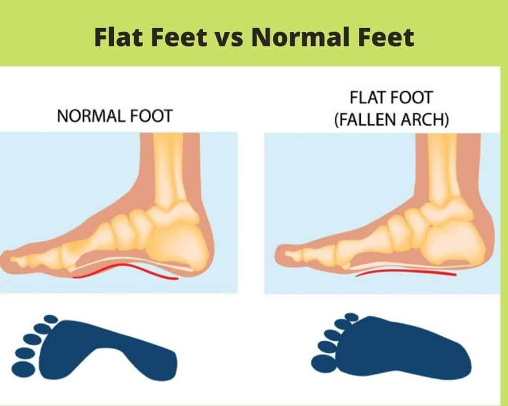 Flat Feet Vs Normal Feet